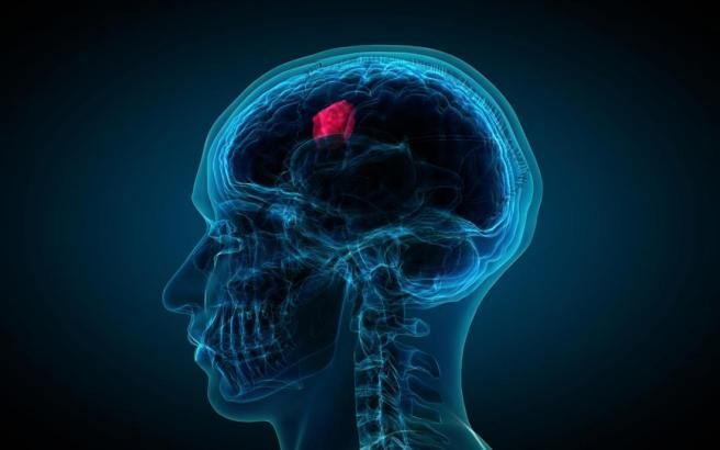 an-illustration-depicting-a-brain-tumor